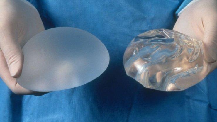 Что мы знаем об грудных имплантах и чем они опасны? кажется очень